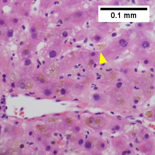 Bile in hepatocytes about central vein & in plugs in canaliculi [yellow arrowhead] (400X).