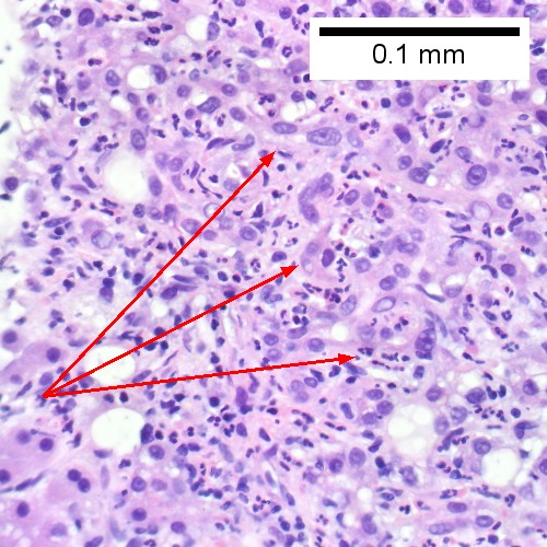 Proliferated bile ductules (arrows) bearing neutrophils within epithelium and lumens are features of obstruction that should prompt a search for interlobular ducts with acute inflammation (Row 2 Left 400X).