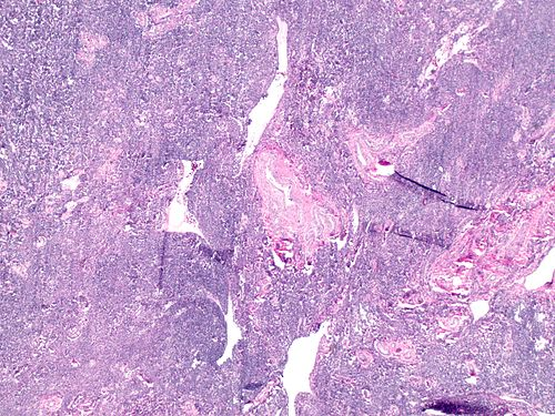Highly cellular leiomyoma on showing thick walled vessels at 20x.jpg