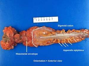 Abdominoperineal resection grossing - Libre Pathology