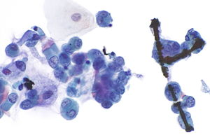 Ferruginous body - Libre Pathology