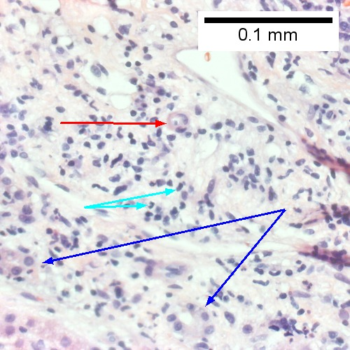 The epithelium of the ducts can be severely degenerated. Neutrophils (cyan arrows) invade epithelium of an interlobular duct that are recognizable mainly as a circle of rounded nuclei; the associated arteriole (red arrow) should be identified to ensure an interlobular duct is being evaluated. Note the proliferated bile ductules (blue arrows)  (Row 2 Right 400X).