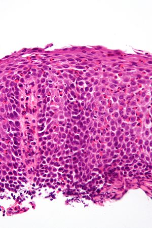 Eosinophilic Esophagitis Libre Pathology