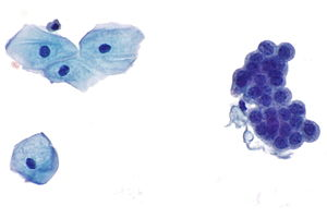 Urine cytopathology - Libre Pathology