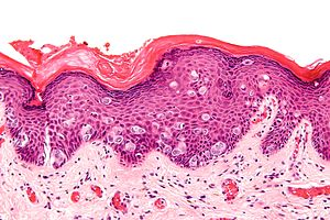 Paget's disease of the breast - Libre Pathology