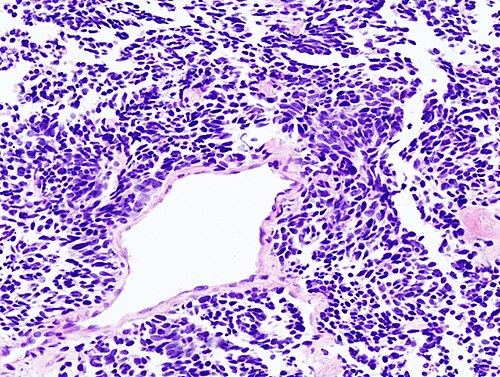 Lung small cell carcinoma (2) by core needle biopsy.jpg