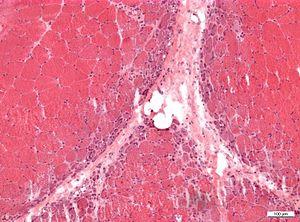 Neuromuscular pathology - Libre Pathology