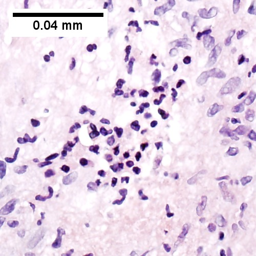 500x500px Center of previous granuloma showing pyknotic macrophage nuclei
