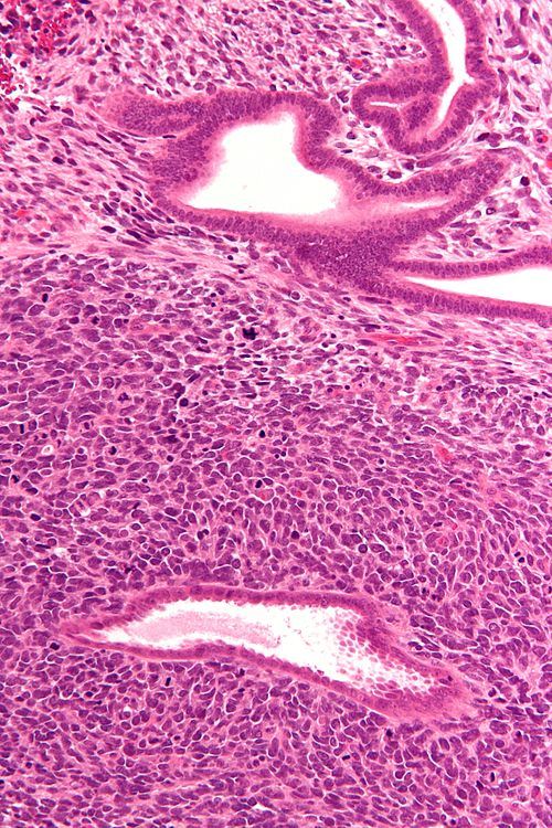 Uterine adenosarcoma - high mag.jpg