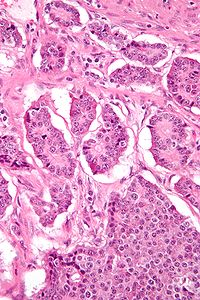 Signet Ring Cell Carcinoma Stomach Icd