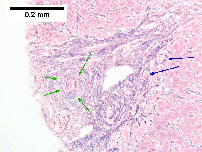 Primary sclerosing cholangitis - Libre Pathology