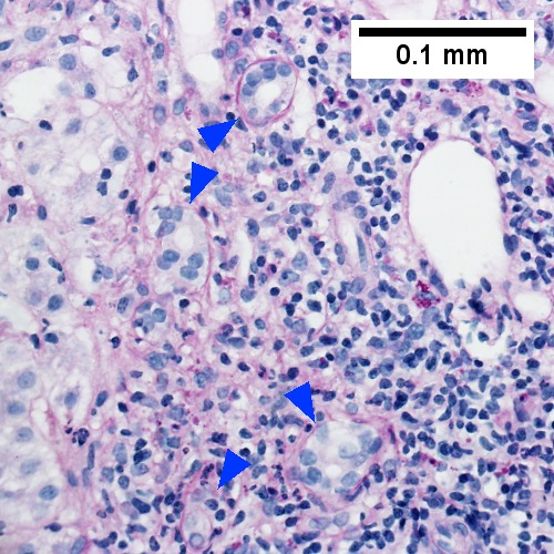 PAS with diastase stain shows proliferated bile ductules [blue arrowheads] in stroma with mixed inflammatory infiltrate (400X)