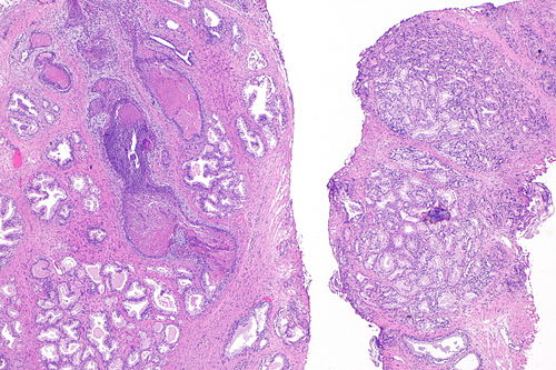 Adenosis of prostate -- very low mag.jpg