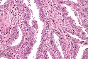 Duct papillomatosis pathology outlines. Viermi la vite