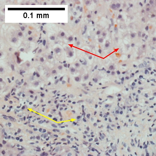 Interface hepatitis with plasma cells (yellow arrows) and ballooned hepatocytes (red arrows).  Lobule is disorganized (400X).