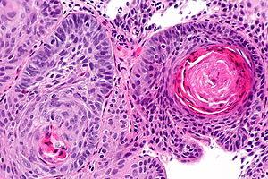 Benign squamous papilloma penile, Squamous papilloma libre pathology