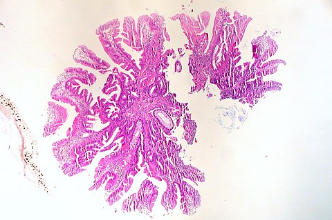 Traditional Serrated Adenoma of Colon (5204504400).jpg