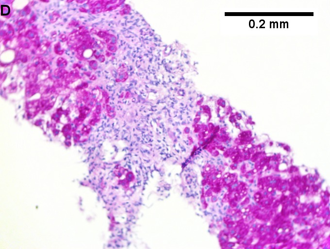 Changes of steatohepatitis and interface hepatitis, with granuloma. Patient with diabetes was ANA, AMA, HCV, HBV negative, without drugs known to produce granulomas or interface hepatitis. This may be a case of AMA negative primary biliary cirrhosis, but studies to determine that with certainty were not performed.