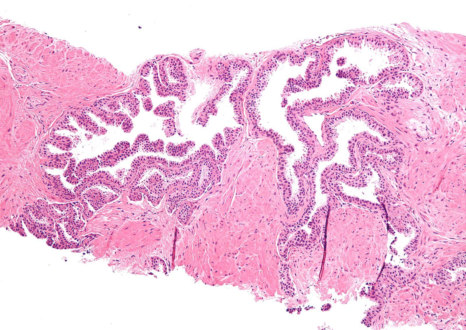 гистология простатита