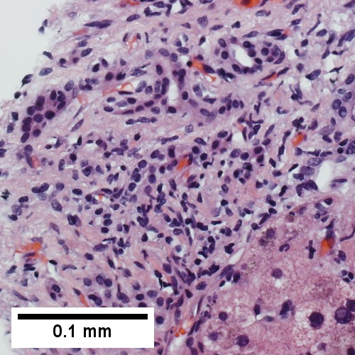 At high power, a modest inflammatory infiltrate accompanies proliferating bile ductules; no piecemeal necrosis (400X)