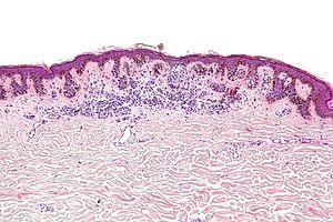 Dysplastic Mole Biopsy