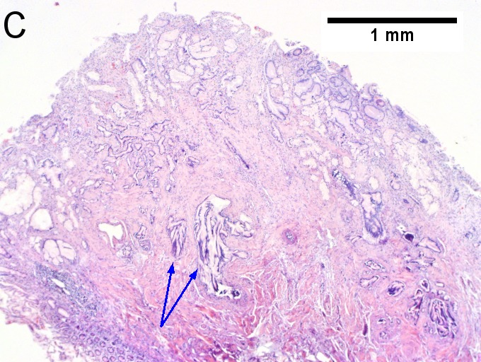 Invasive carcinoma of duodenal ampulla.