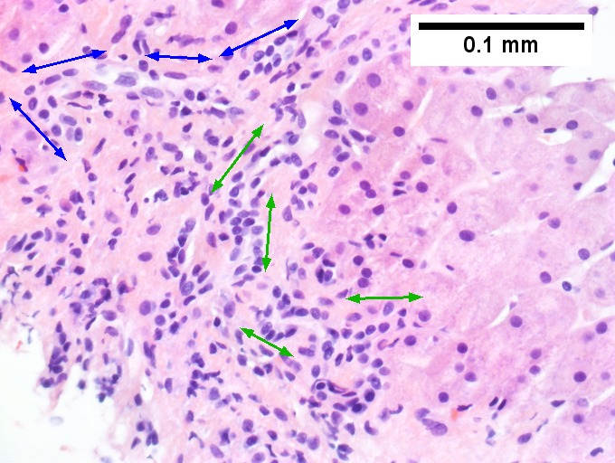 Cirrhosis in an alcoholic.