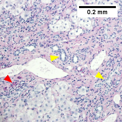 Edematous stroma, proliferating ductules [yellow arrowheads], PAS-D macrophages [red arrowhead] (PAS with diastasse, 200X)