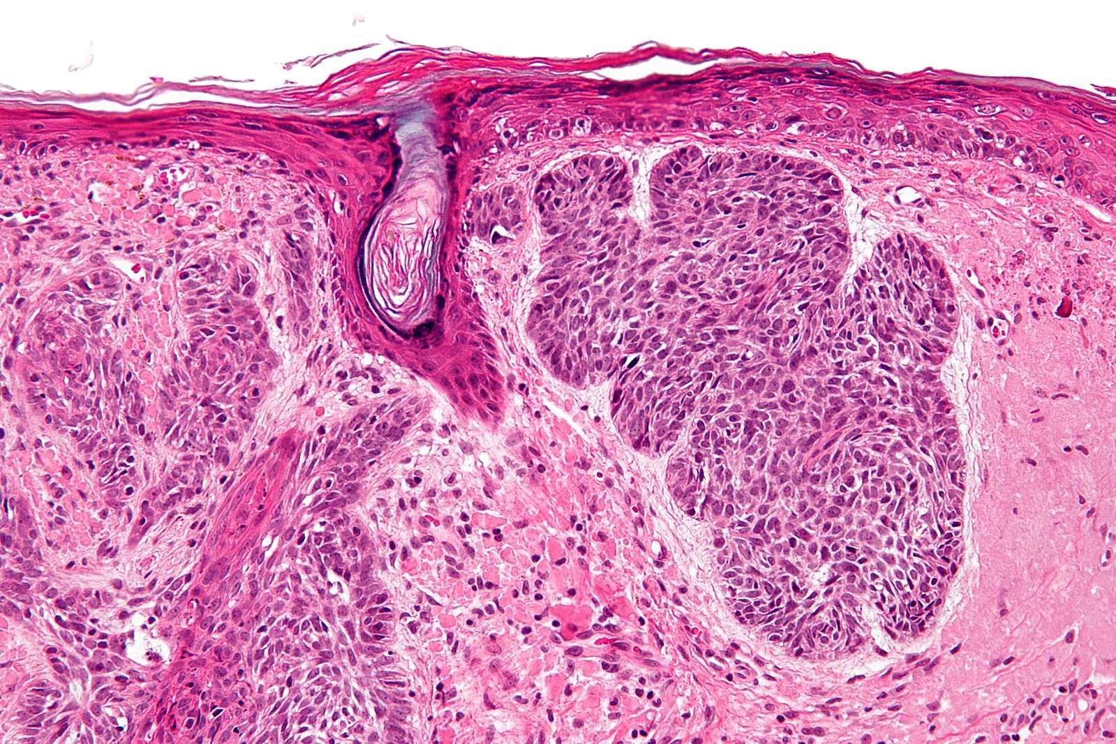 Undifferential carcinoma in young girl