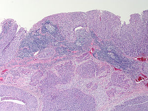 Squamous carcinoma of the anus excellent and
