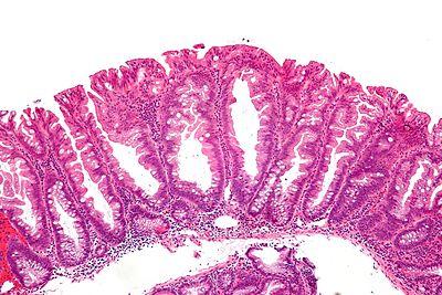 quizgastrointestinal polyps 1 libre pathology