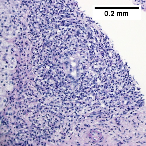 PAS with diastase shows intense inflammation of portal triad stroma, with some reduplication of ductal epithelium. The patient's vial serology and anti-microbial antibody were negative. (200X).