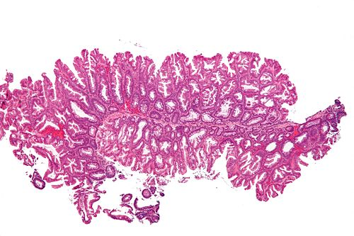 Sessile serrated adenoma 3 low mag.jpg